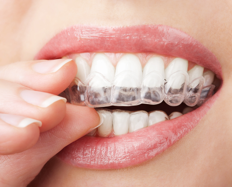 teeth-invisalign