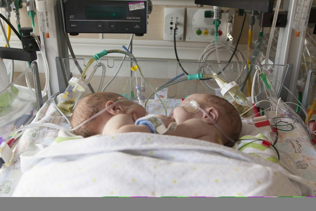 Conjoined Twins Separated At Medical City Children S Hospital D Magazine